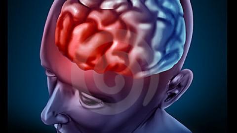 IFS appliqué à la prise en charge de la migraine
